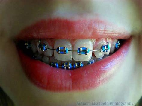 braces colors for teeth blue braces for teeth colors braces colors