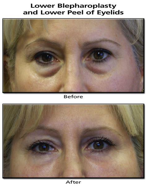 M O B Cosmetic Bruised blepharoplasty cosmetic eyelid surgery causes symptoms