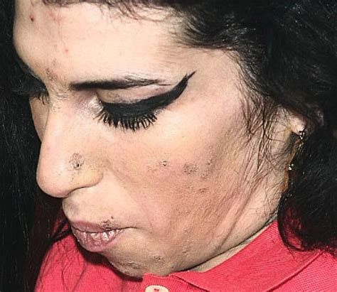 why would someone be covered in sores amy s friends fear the worst as she appears with her face
