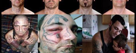 nazi tattoo removal pin neonazi bryon widner lsst sich tattoos weglasern welt