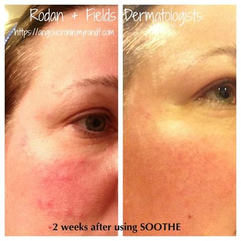 7 Ways To Soothe Skin Irritations by 1000 Images About Rodan And Fields Skin Care Soothe On