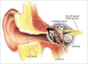 What Is The Cause Of A Brain Tumor by Sensorineural Deafness Causes Symptoms Treatment