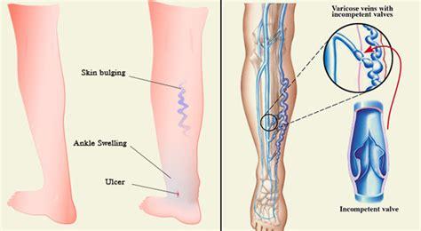 vasi arti inferiori varici degli arti inferiori cause 5 errori da evitare e