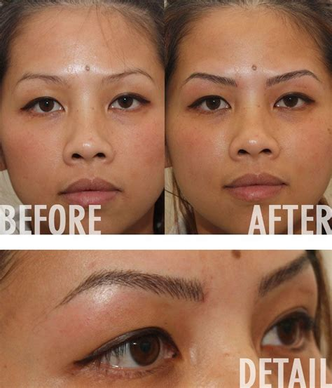 remove tattoo eyebrows eyebrow removal before and after images