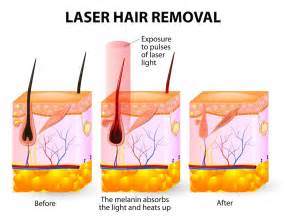 does prids work on ingrown hairs laser hair removal luxe laser center