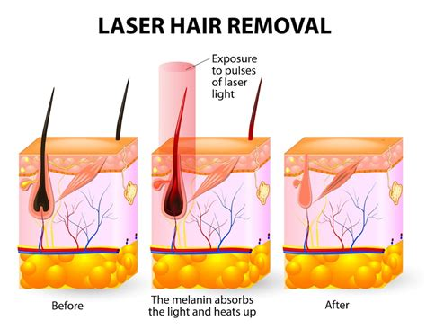 Different Types Of Wax Used For Hair Removal by Laser Hair Removal Luxe Laser Center