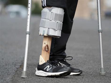 woman  prosthetic leg  husband  bits