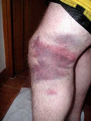 phantom rug burn on the knee feeling can bruises cause serious blood clots