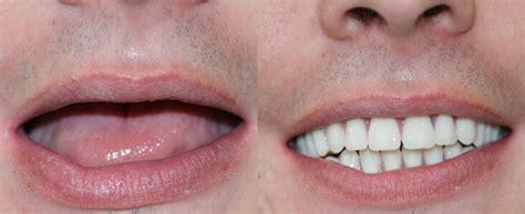 comfortable dental dental implants