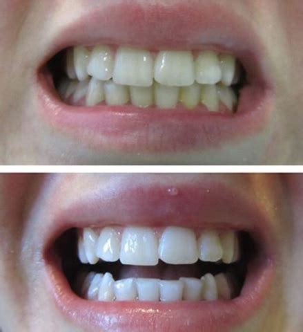 snow teeth whitening reviews beforeafter