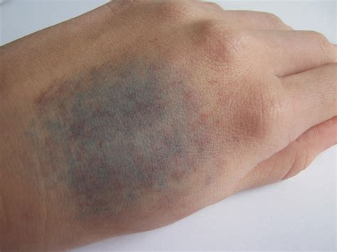 why do bruises change color 28 images why do bruises