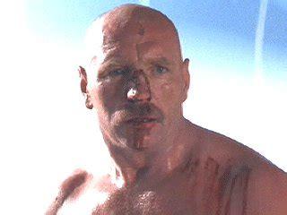 is cheryl burton bald a clockwork orange