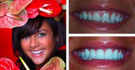 gum lift gallery  chichester dentists waterlooville gum