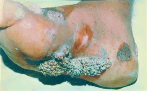imagenes asquerosas de enfermedades tratamiento exitoso de un caso de cromoblatomicosis