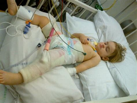 hip dysplasia surgery hip dysplasia why we should burn forward facing baby carriers northern