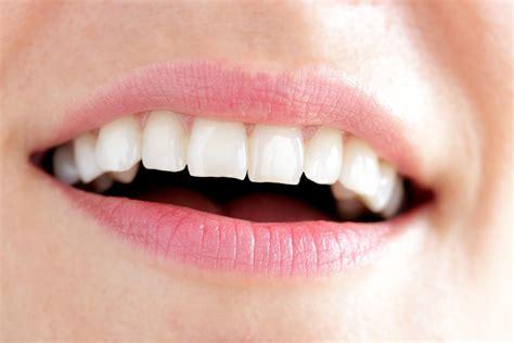 Tanden Polijsten by Facings