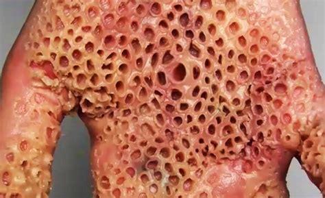 Obat Kulit Herbal Lotus penyakit kulit berlubang alias trypophobia