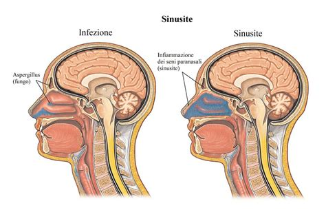 sintomi mal di testa sintomi della sinusite acuta o cronica cura e rimedi naturali