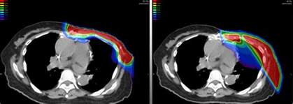 Proton Beam Therapy For Breast Cancer Proton Therapy Advantages Benefits Seattle Cancer Care
