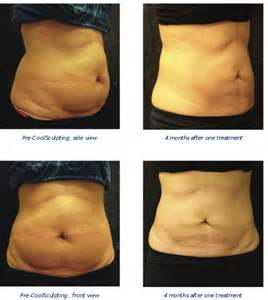 coolsculpting at home coolsculpting dermatology consultants