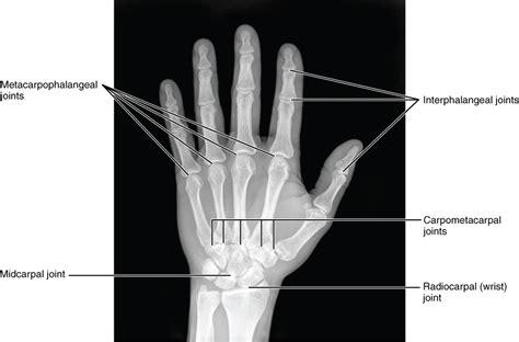 Handgelenk Bilder by Das Handgelenk Anatomie Der Oberen Extremit 228 T