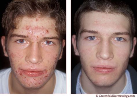 Skincare For The Treatment Of Acne by Acne Treatment Get Rid Acne Blackheads Mn