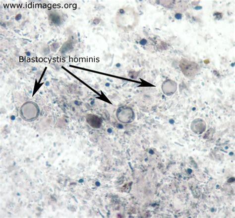 Black Granules In Stool by Blastocystis Hominis Laboratories