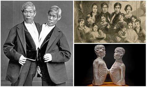 imagenes de niños que nacen pegados 191 sabes por qu 233 se llama siameses a los gemelos que nacen