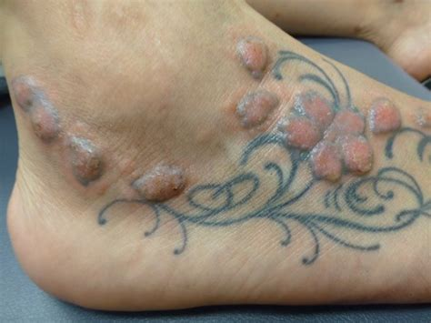 tattoo ink effects on liver tattoos can cause serious adverse reactions