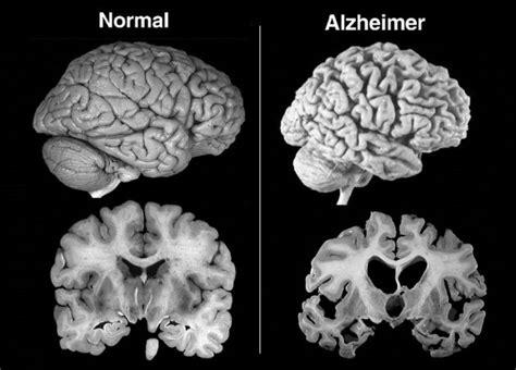alimentazione per malati di alzheimer salute domani 45599 per sostenere pronto alzheimer