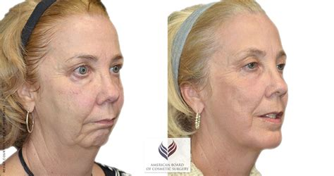 cosmetic surgery facial procedures houston tx facelift procedure guide american board of cosmetic surgery