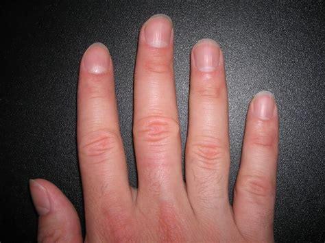 cyanotic nail beds cyanotic nail beds related keywords cyanotic nail beds