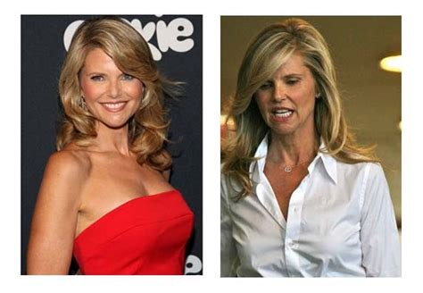 Christie Brinkley Gets Emergency Surgery by Plastic Surgery Before After Christie Brinkley Plastic