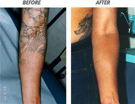 risks of tattoos the risk of laser removal in arm