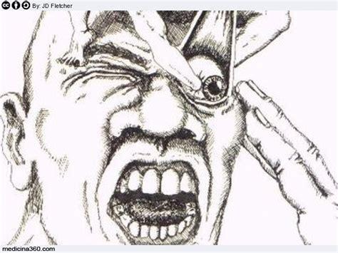 cefalea a grappolo alimentazione cefalea a grappolo