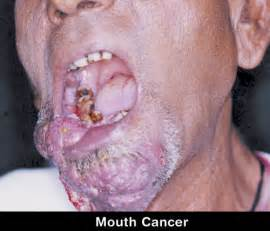 Bar Top Bandits Mouth Cancer From Dipping Tobacco