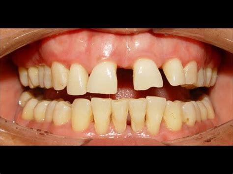 orthodontic treatment of severe median diastema, ekhlas