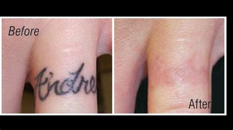 tattoo removal on finger why should you choose laser tattoo removal 187 disappearing