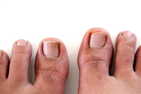 Nail Problems by Ingrown Toenail Treatment Bc Island Foot Clinics