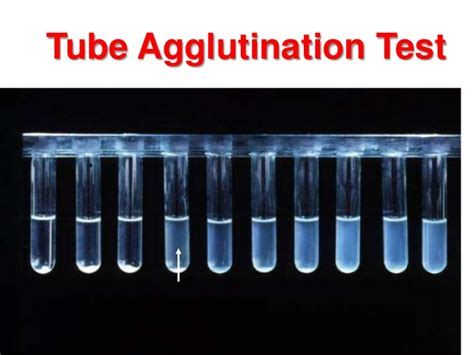 widal wright test agglutination tests and immunoassys