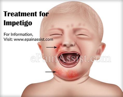 impetigo causes risk factors signs symptoms treatment