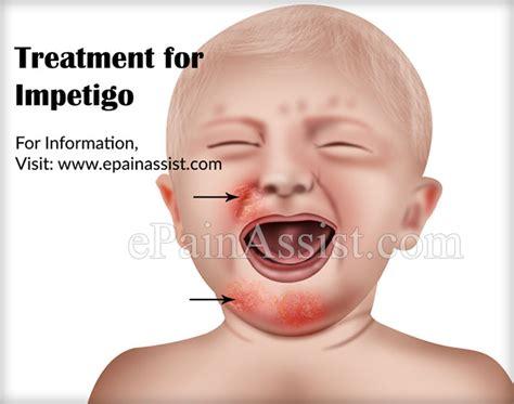 impetigo causes risk factors signs symptoms treatment
