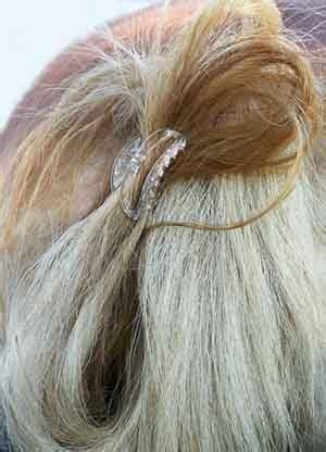 horseshoe hair sectioning treating founder chronic laminitis without horseshoes 15