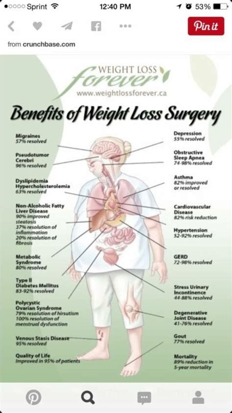 guide to types of weight loss surgery mayo clinic 102 best images about pre gastric bypass surgery on