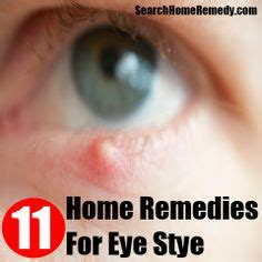 home remedy for stye stye remedy on pink eye remedies bruise