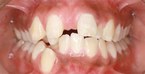gum lifts reshaping  contouring newcastle cardiff