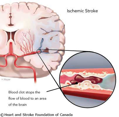 Herbal Carefor Stroke ischemic stokeinteractive health