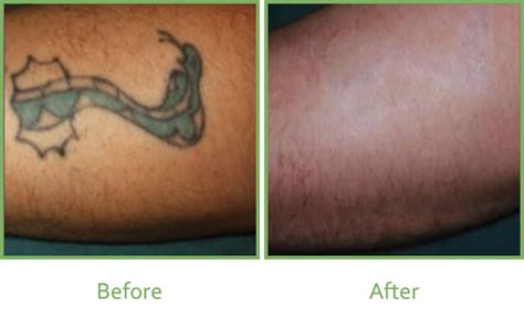 tattoo removal green ink laser tattoo removal vale laser clinic