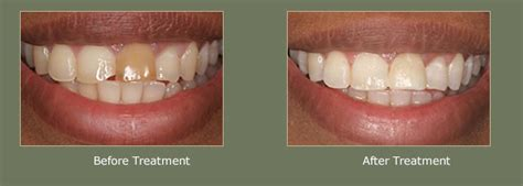 teeth whitening  central london  dr pranay sharma