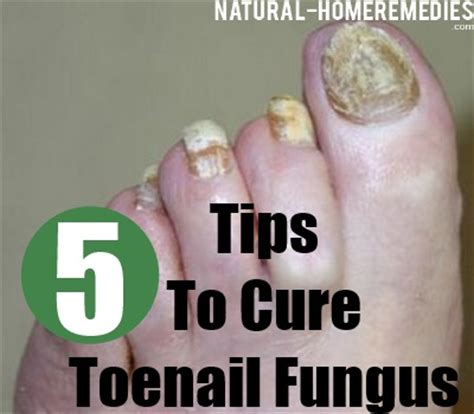 5 cure for toenail fungus treatments
